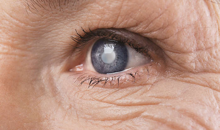 Top 4 Signs You Have Cataracts