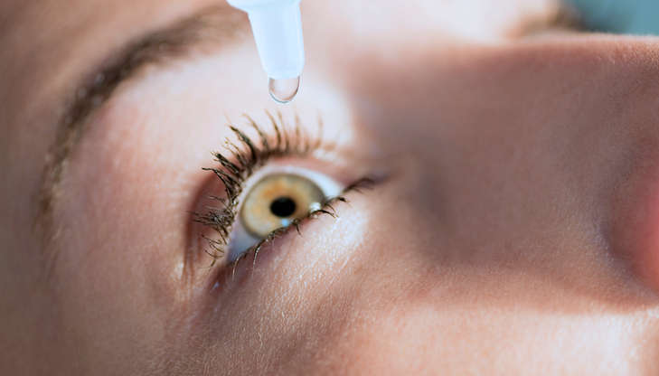 Allergies and Chronic Dry Eye Disease