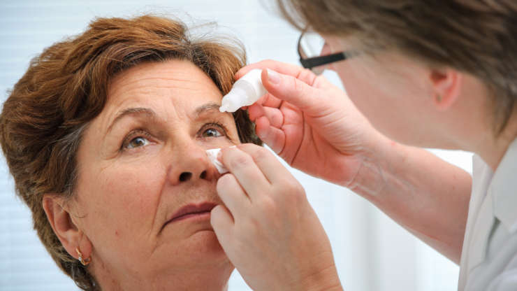 Best Treatments for Dry Eye in Boca Raton
